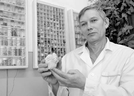 В руках врача-патологоанатома М.Н. Косолапова - самый крупный камень его коллекции