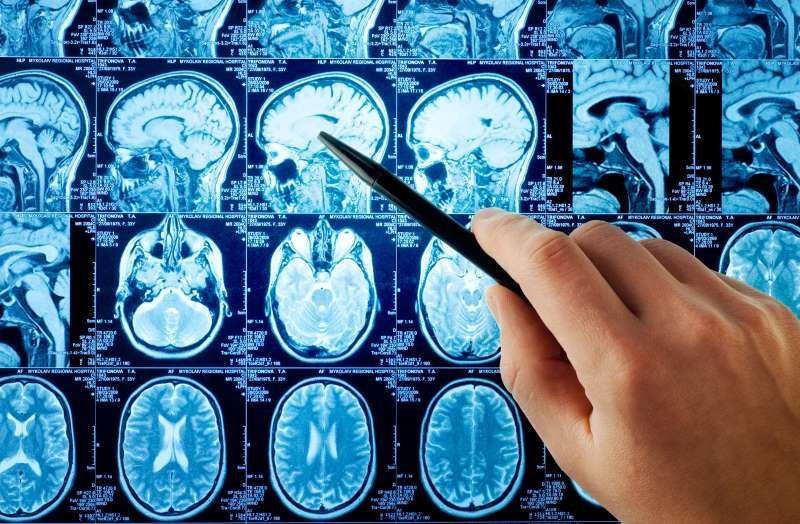 nevrolog